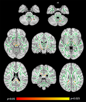 Image of brain image data from the study