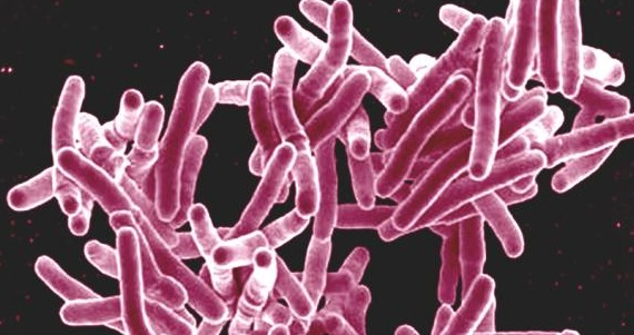 Click to read about ScHARR's research into global tuberculosis cases.