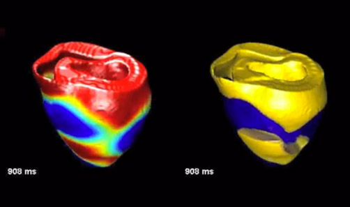 moputational modelling of the heart