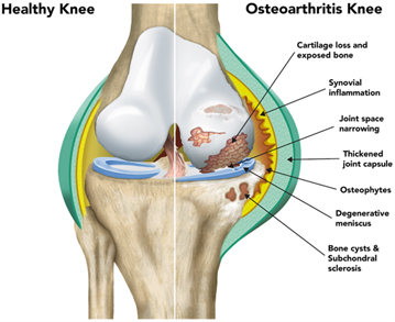 New osteoarthritis genes discovered paving way for new therapies the left side of the image shows the normal knee and the right side shows the diseased joint ccuart Image collections