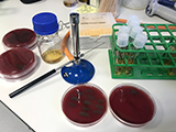 Streptococcus pneumoniae research thumb