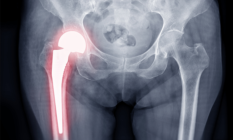 An xray of a person who has had a hip replacement.