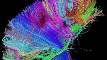 White matter pathways of the human brain revealed by diffusion tensor imaging