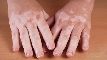 Person with vitiligo