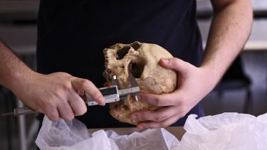 A person holds a human skull, using lab equipment to measure the size of its jaw bone.