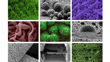 Sorby electron microscopy imagery