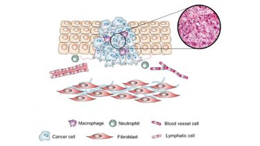 Schematic illustrating the major components of the tumour microenvironment of a squamous cell carcinoma