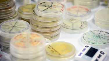 A collection of petri dishes - image
