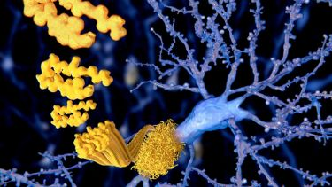 A close up amyloid beta peptide, involved in alzheimers